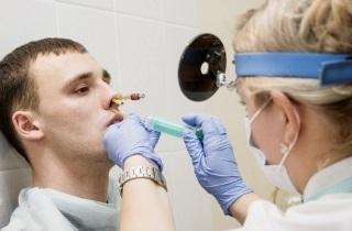 Гнойный синусит – симптомы и лечение острого заболевания