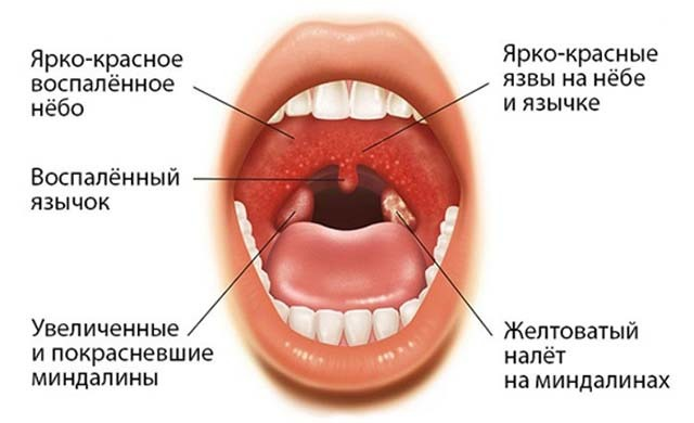 Что такое абсцесс горла – причины и симптомы нарывов