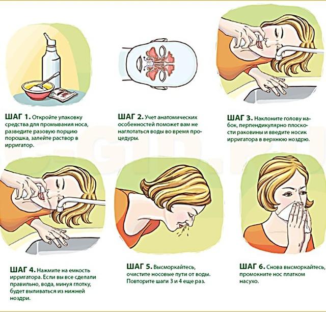 Как сделать и приготовить солевой раствор для промывания носа (рецепт)