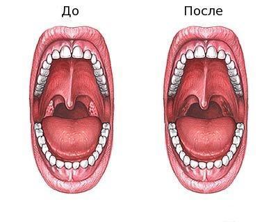 Послеоперационный период тонзиллэктомии – чем полоскать горло после удаления миндалин