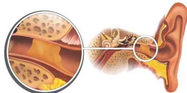Ушная сера - откуда она берется и как образуется