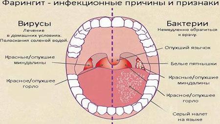 Вирусный фарингит - симптомы и лечение взрослых и детей