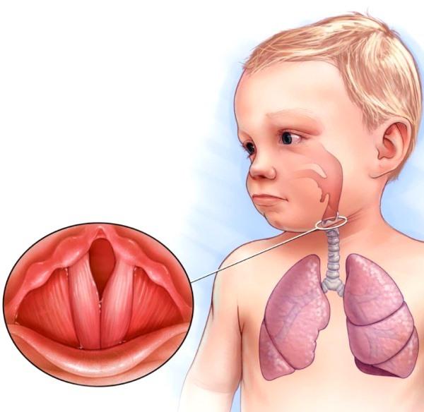 Хрипит горло у ребенка - чем и как лечить