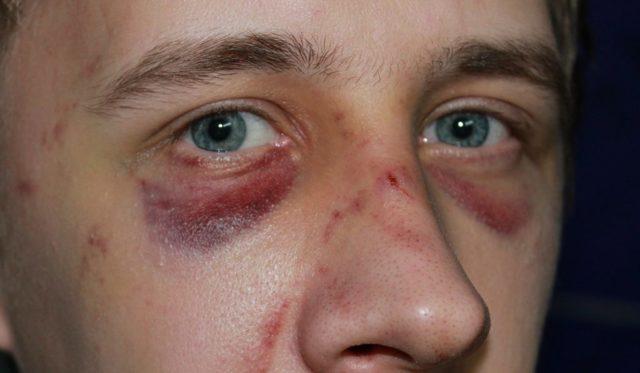 К чему может привести сломанный нос – последствия перелома перегородки