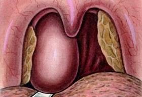 Шишка в горле – что это может быть?