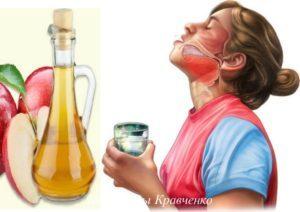 Яблочный уксус при ангине – как правильно полоскать горло