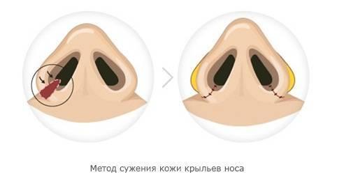 Что такое крылья носа - их строение и предназначение