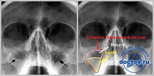 Рентген пазух носа – рентгенография придаточных и околоносовых частей