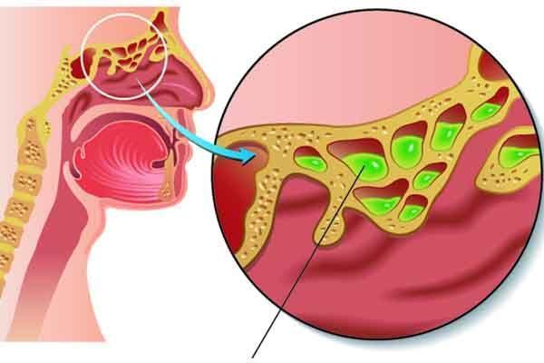 Чем опасен запущенный гайморит – его симптомы и лечение