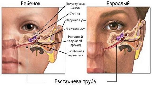 Воспаление среднего уха или средний отит  (двухсторонний, левосторонний и правосторонний)