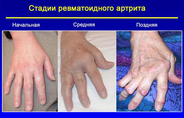 Осложнения ангины у детей – опасности после болезни