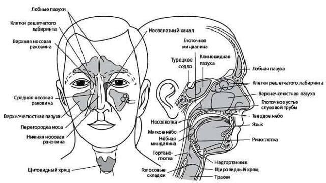 Киста лобной пазухи – симптомы и лечение без операции