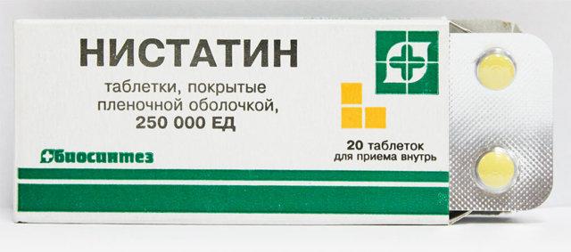 Грибок в горле (кандидоз миндалин) – фарингомикоз