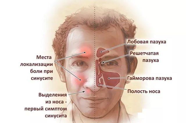 Что такое синусит - его симптомы и способы лечения