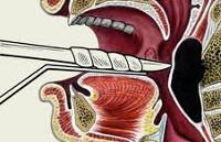 Заглоточный абсцесс – симптомы и лечение взрослых и детей