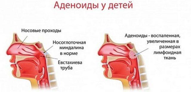 Е.О. Комаровский – желтые густые сопли у ребенка