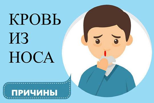 Первая помощь при носовом кровотечении – алгоритм неотложной медицинской процедуры