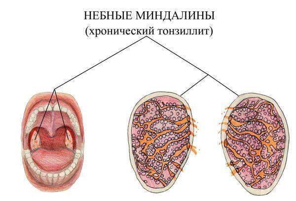 Лечение хронического тонзиллита – можно ли избавиться от него навсегда