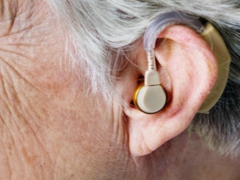 Чем отличается слуховой аппарат от усилителя слуха и звука?