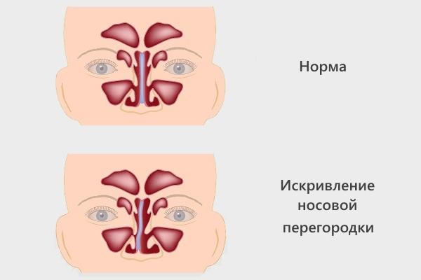 Что такое катаральный риносинусит – острая и хроническая формы