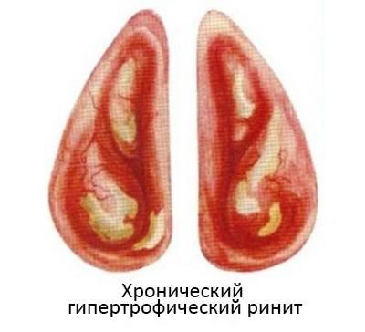 Что такое гипертрофический ринит - симптомы и лечение