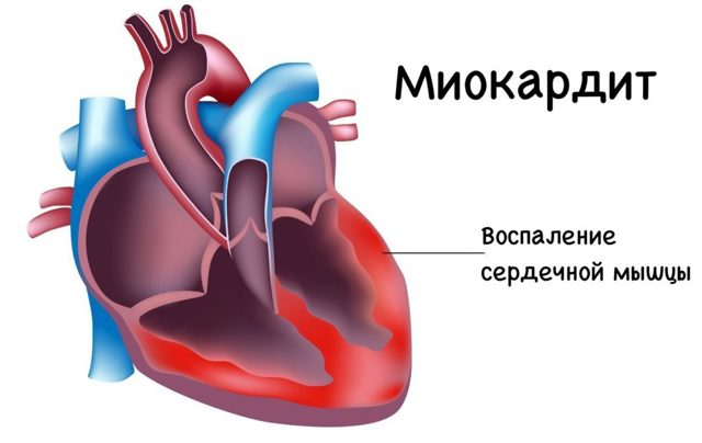 Осложнения на сердце после ангины - каково влияние