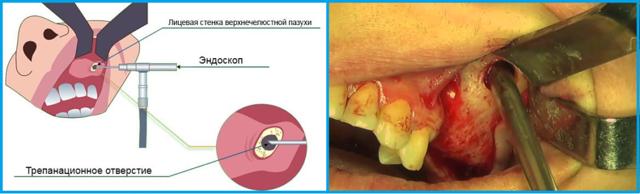 Микрогайморотомия или операция по удалению кисты из пазухи носа
