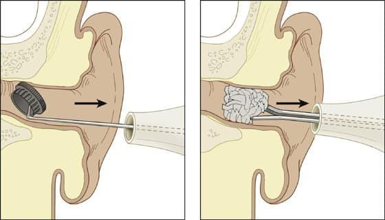 Инородное тело в ухе – как его вытащить и достать