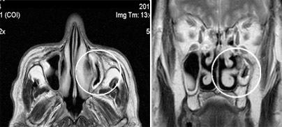 Что такое лобные пазухи и что означает их недоразвитость