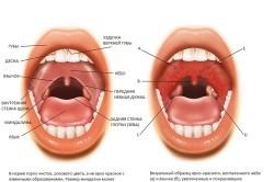 Что такое хронический компенсированный тонзиллит или субкомпенсированная форма