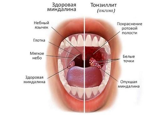 Рыхлое горло у ребенка - причины и лечение миндалин