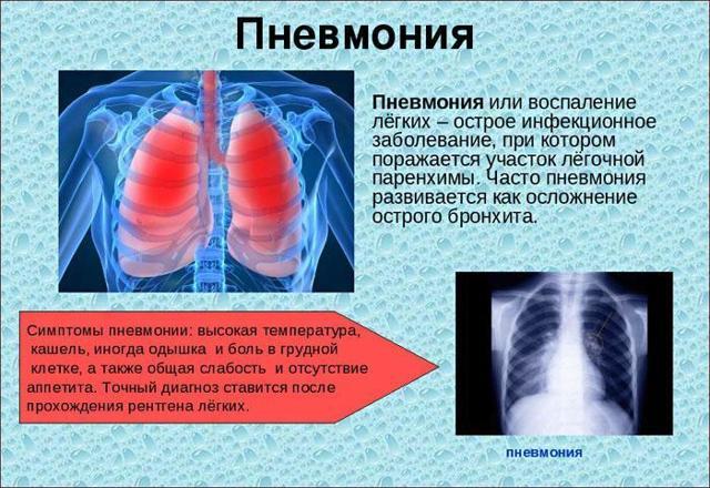 Как быстро вылечить кашель и насморк в домашних условиях