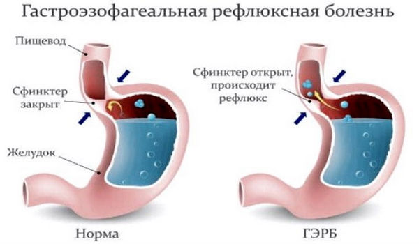 Что такое желудочный кашель – симптомы и лечение