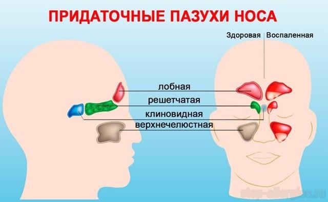Новообразования и опухоли носа – что может опухнуть у человека