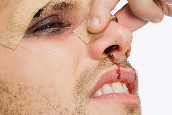 Что такое репозиция костей носа – как правильно вправить нос